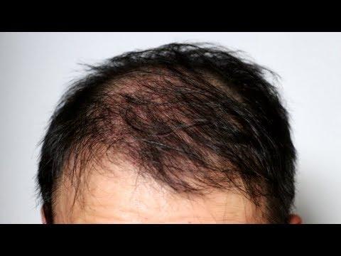 【ミノタブとフィンペシアの副作用発生】初期脱毛始まる| フィンペシアとミノタブで育毛20日目