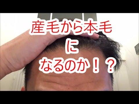 「脱・薄毛」4ヶ月経過。ミノキシジルの効果とは?(17.01.13)